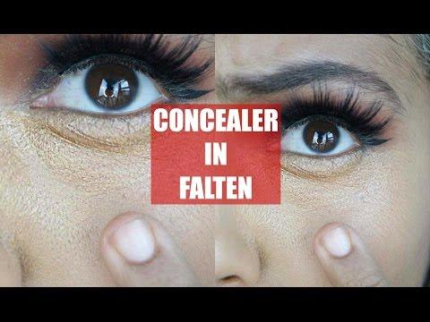 Die Wassergeschwülste unter den Augen die plastische Chirurgie