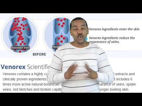 Il varicosity di vene che stanno a chi rivolgersi