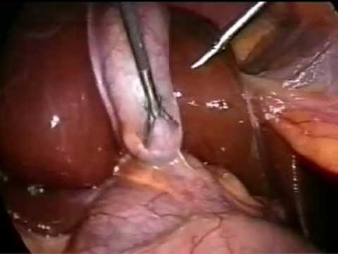 Лапароскопическая холецистэктомия (удаление желчного пузыря)