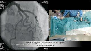 Динамическая обструкция коронарной артерии