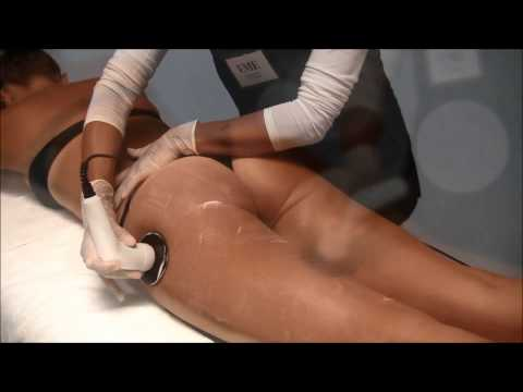 Trattamento di agopuntura di ernia lombare