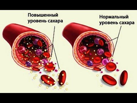 Билирубин у диабетика