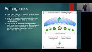Dr. Fredrick Korir – Anterior Segment – Fuchs Endothelial Dystrophy; A Case Presentation