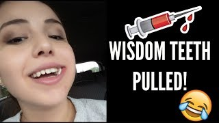 So yesterday I got one side of my wisdom teeth pulled SUBSCRIBE More videos soon 3 :