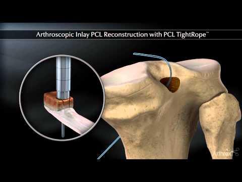 Inflamația sacului articular al tratamentului articulației cotului