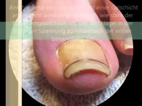 Die Behandlung gribka der Nägel des Fusses vom Wasserstoffperoxid die Rezensionen