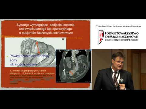 Wewnątrznaczyniowa terapia przewlekłego rozwarstwienia aorty piersiowej. Wykład.