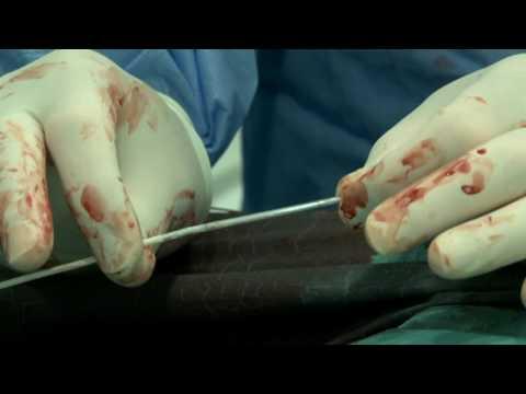 Sanguijuelas. a. hipertensión