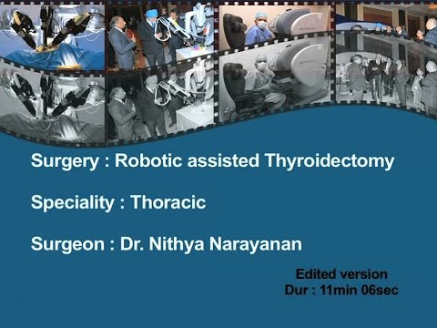 Robotic Assisted Thyroidectomy - Dr Nithya Narayanan - Edited Version