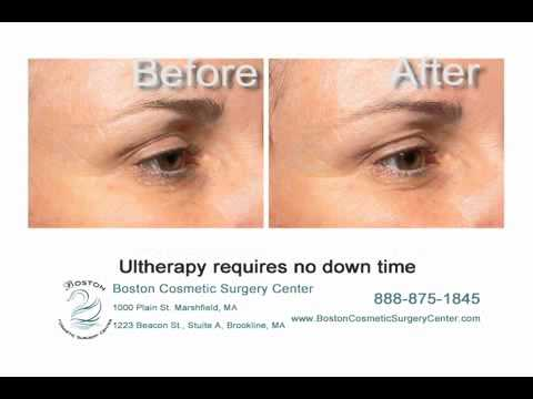 Ultherapy - Ultrasound Technology for Skin Lifting and Firming | Boston Cosmetic Surgery Center