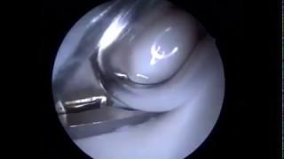Операция по удалению чипа из сустава лошади. Вид изнутри!
