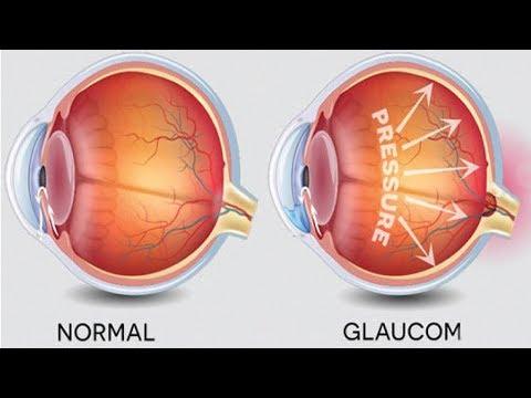 Epe îmbunătățește vederea
