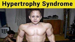 10 Rare Diseases That Give Superhero-Like Abilities