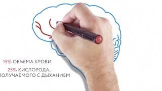 Doodle Video для медицинской компании об инсульте.