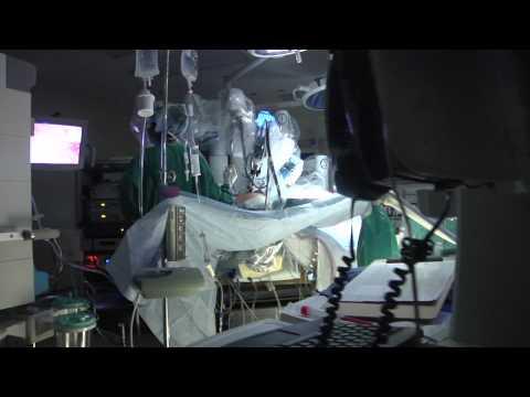 Apparatus for the treatment of prostatitis ereton