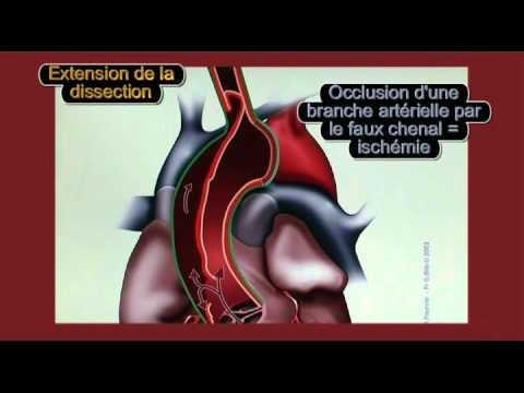 Le traitement de lhypertension Reishi
