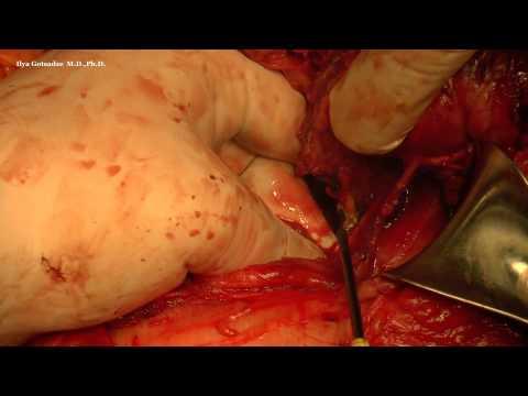 Hemikolektomia prawostronna z powodu olbrzymiego guza jamy brzusznej (sarkoma)