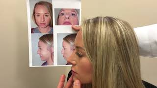 Aesthetic Result After Rhinoplasty & Chin Augmentation