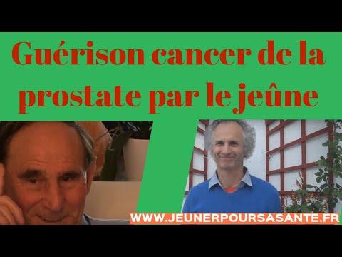 Prostate étiologie et la pathogenèse du cancer