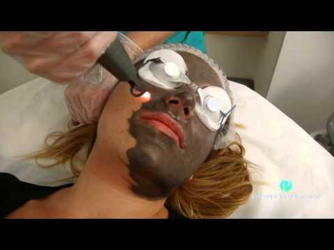 Nakahalang wrinkles sa paligid ng mga mata