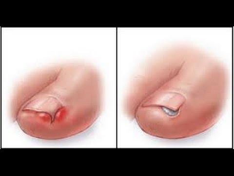 Ekzoderil-medicina per un fungo di unghie
