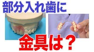 部分入れ歯には必ず固定用の金具がついている?