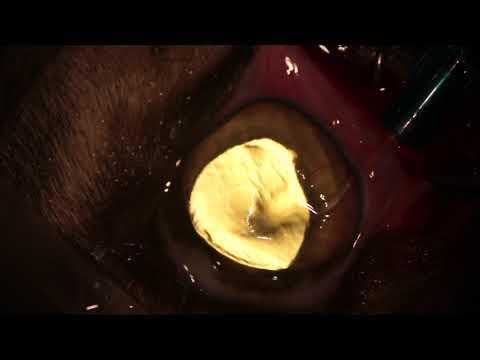 Dystonie, les artères cérébrales de type hypertensive