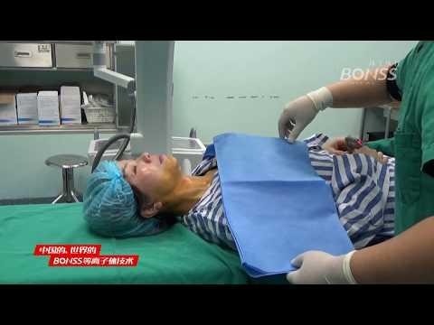 Come stabilire la circolazione del sangue nelle articolazioni