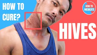 How to treat Hives (Urticaria)? - Doctor Explains