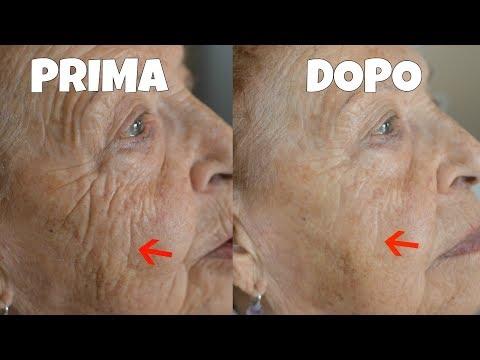 Greeny la salute di maschera calmante e la freschezza della persona antikuperozny risposte
