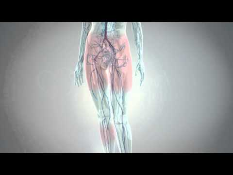 La gamba dopo operazione su eliminazione di posizione di vene si è gonfiata