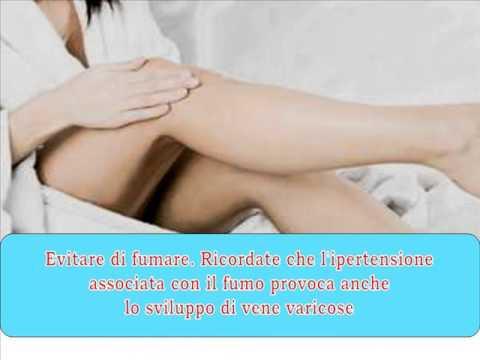 A varicosity può bruciare una gamba