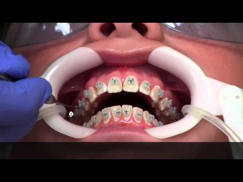 Getting Braces - How?
