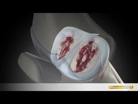 Wie von Hüftdysplasie zu massieren