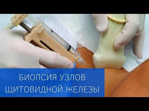 Пункционная биопсия узлов щитовидной железы в ЕМС