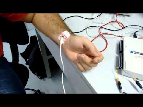 Projeto de Eletrocardiograma (ECG)