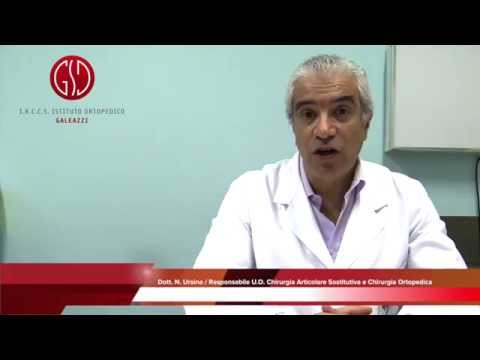Osteoartrite del fluido ginocchio