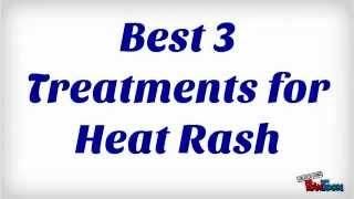 Descargar MP3 de How Long Does Heat Rash Last gratis  BuenTema Org