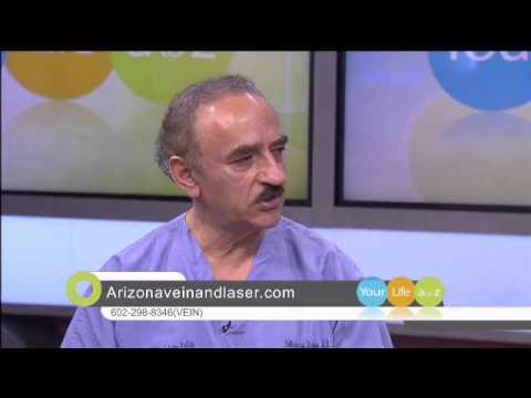 Varicosity e trombosi