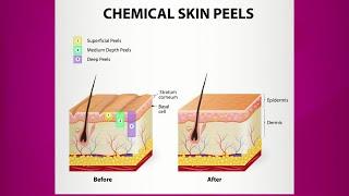 Chemical Peel: Purpose & Types