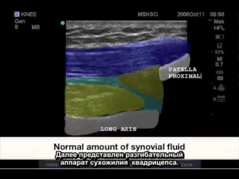 Как долго заживает разрыв связок голеностопного сустава
