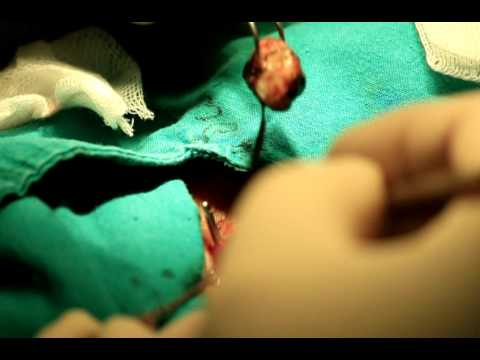 Ileofemoralny ลิ่มเลือดอุดตัน ICD-10