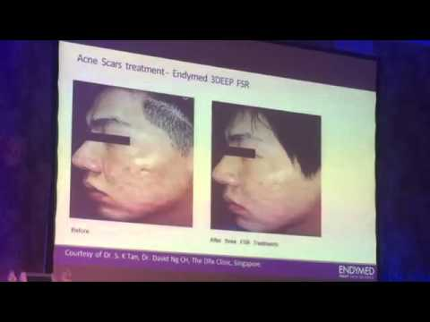 OPTIMAL TREATMENT OF ACNE SCARS