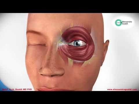 Терапия при гипертонии 1 степени - Imbracatura sovrapposizione quando la pressione sanguigna