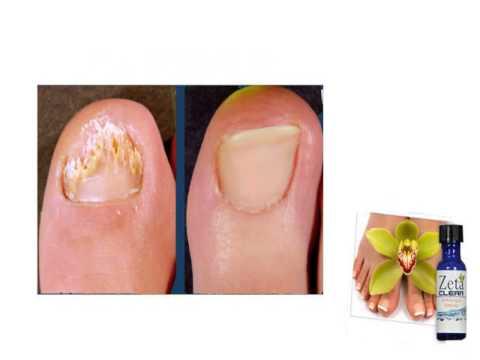 Die Behandlung gribka der Füsse der Beine vom Jod