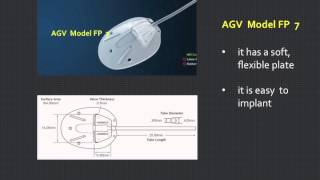 AGV in SWS presented in 2nd APGC at Hong Kong