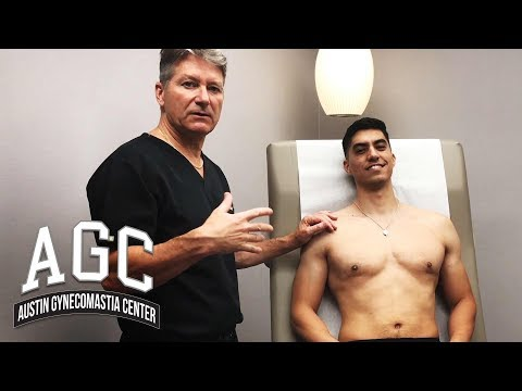 Procedure Video: Final Steps of Gynecomastia Treatment with Carlos