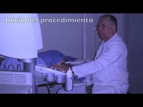 Tratamiento eficaz de remedios populares prostatitis