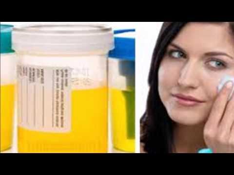 El cuentagotas de la psoriasis