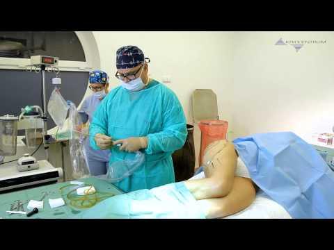 Leczenie żylaków bez chirurgii